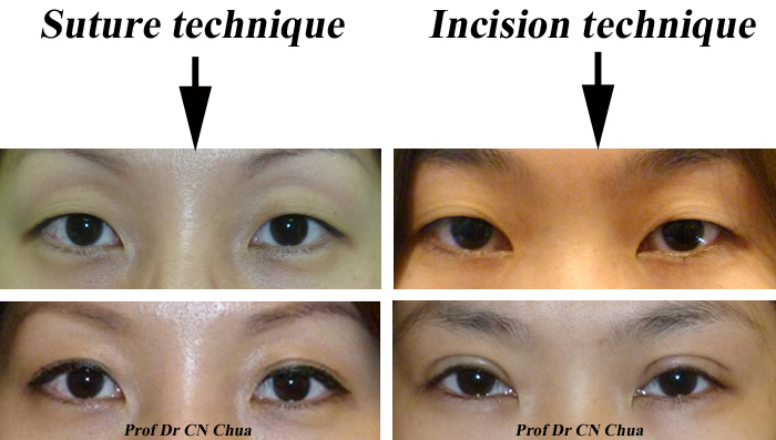 Asian Double Eyelid Surgery – See Thao